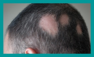 Treatment for alopecia