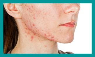acne treatment London