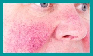 rosacea treatment London