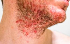 seborrheic dermatitis treatment